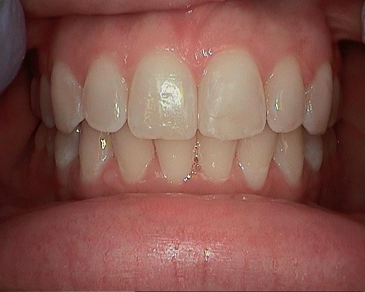 after of sasha teeth