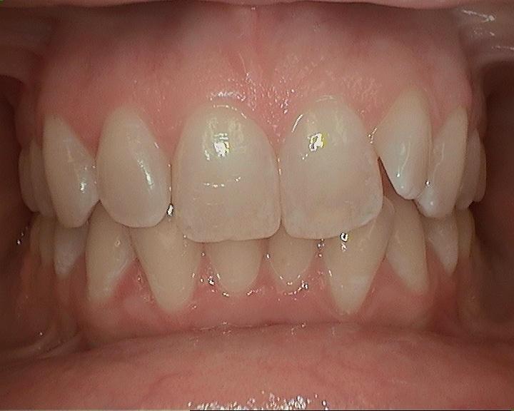 before of sasha teeth